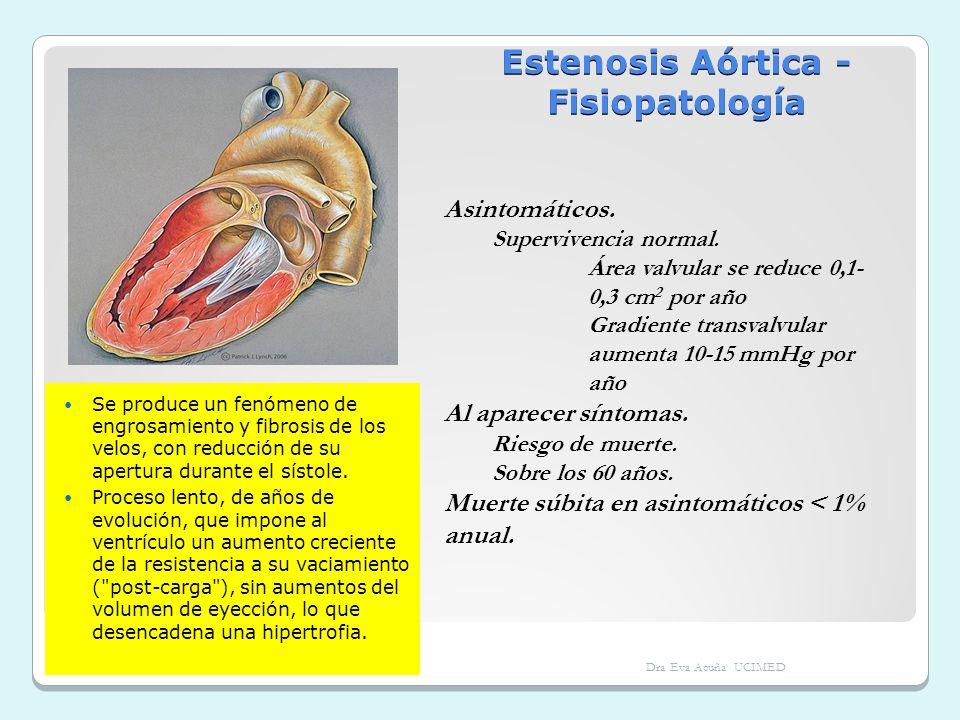 Estenosis Aórtica - Fisiopatología Se produce un fenómeno de engrosamiento y fibrosis de los velos, con reducción de su apertura durante el sístole. P