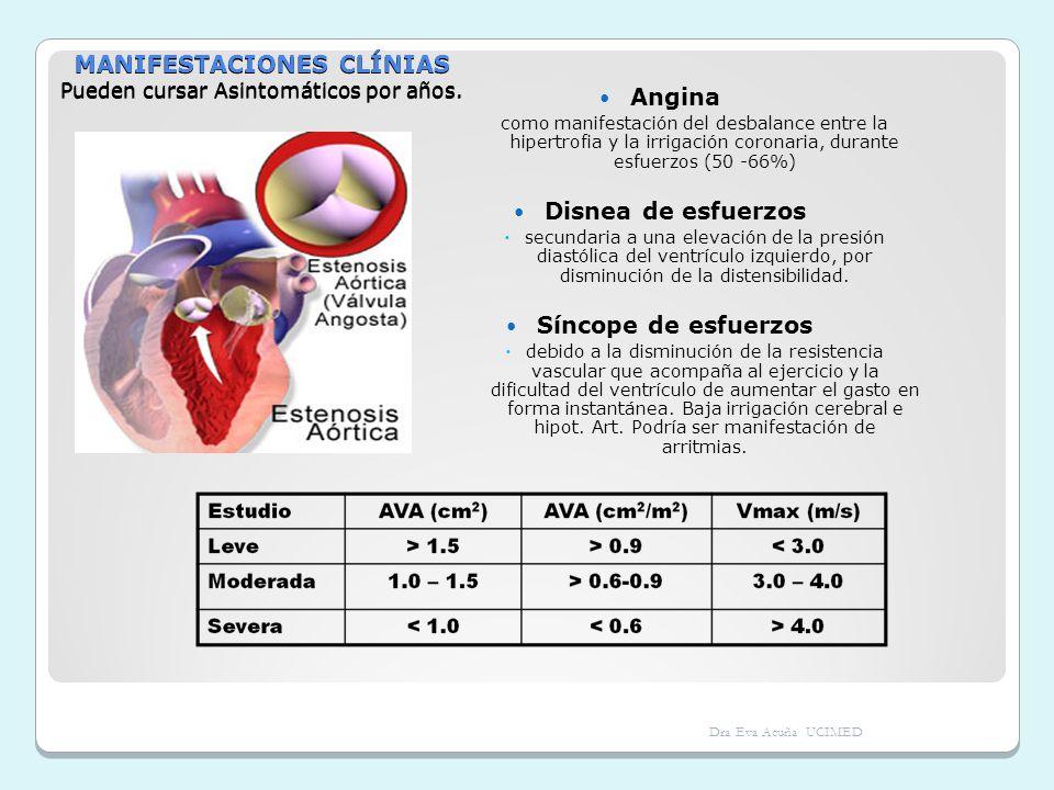 MANIFESTACIONES CLÍNIAS Pueden cursar Asintomáticos por años. Angina como manifestación del desbalance entre la hipertrofia y la irrigación coronaria,