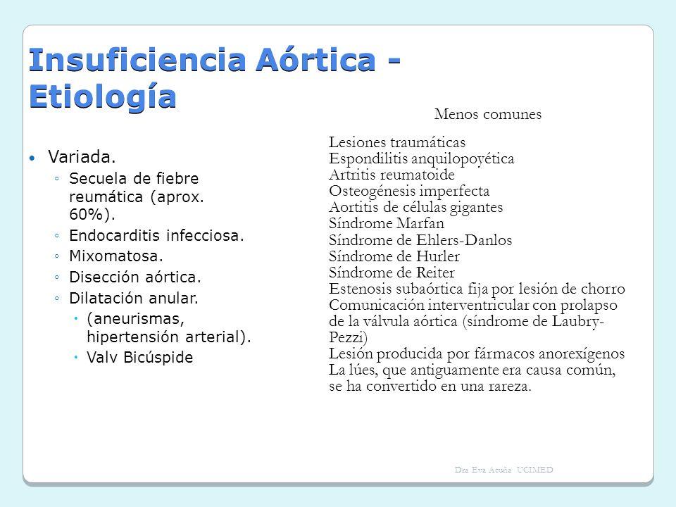 Insuficiencia Aórtica - Etiología Variada. Secuela de fiebre reumática (aprox. 60%). Endocarditis infecciosa. Mixomatosa. Disección aórtica. Dilatació
