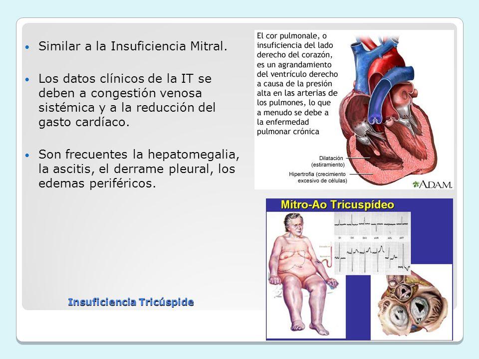 Similar a la Insuficiencia Mitral. Los datos clínicos de la IT se deben a congestión venosa sistémica y a la reducción del gasto cardíaco. Son frecuen