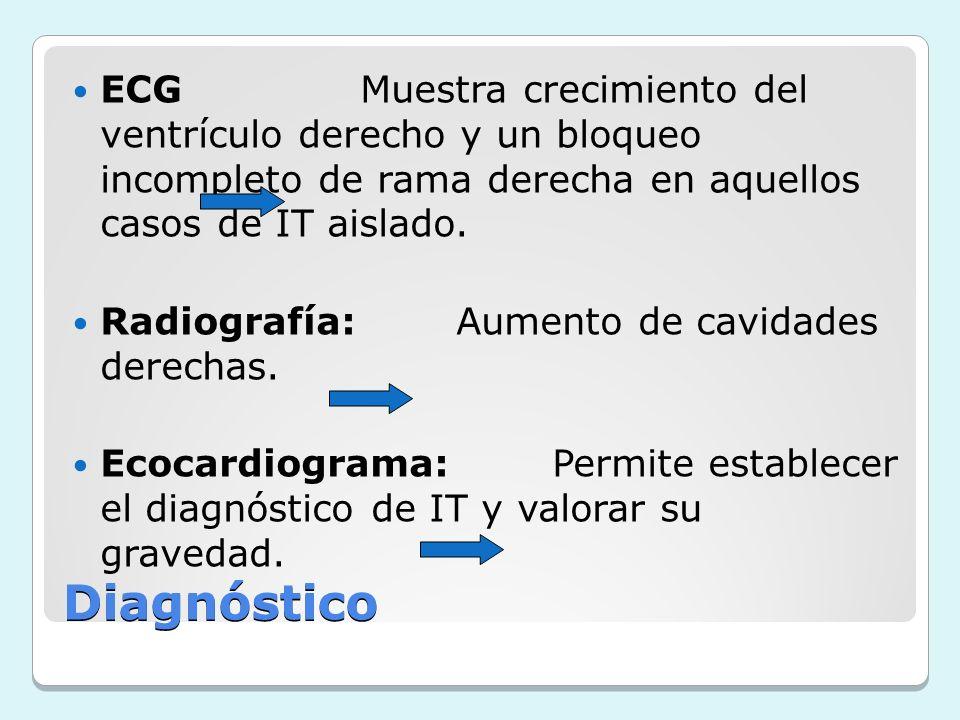 Diagnóstico ECGMuestra crecimiento del ventrículo derecho y un bloqueo incompleto de rama derecha en aquellos casos de IT aislado. Radiografía:Aumento