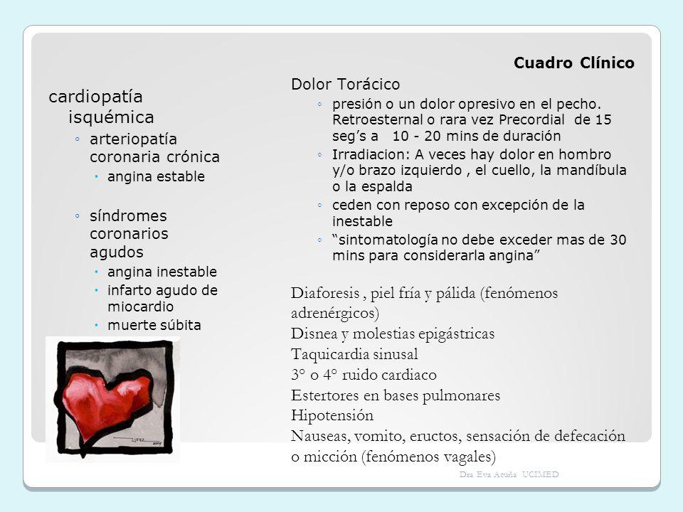 cardiopatía isquémica arteriopatía coronaria crónica angina estable síndromes coronarios agudos angina inestable infarto agudo de miocardio muerte súb