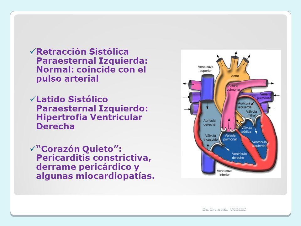 Retracción Sistólica Paraesternal Izquierda: Normal: coincide con el pulso arterial Latido Sistólico Paraesternal Izquierdo: Hipertrofia Ventricular D