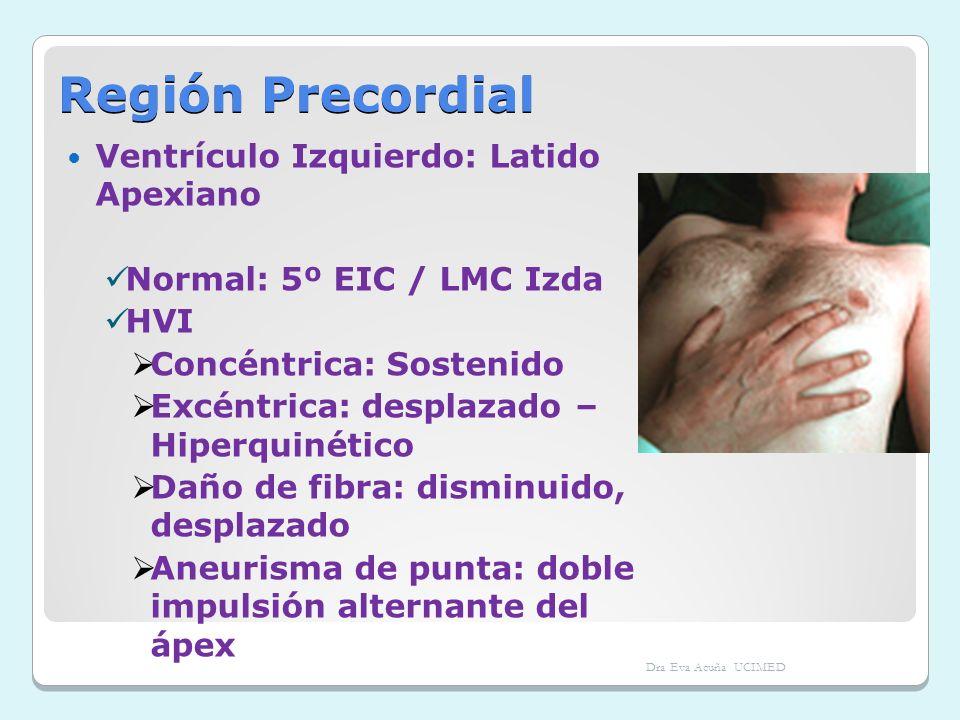 Región Precordial Ventrículo Izquierdo: Latido Apexiano Normal: 5º EIC / LMC Izda HVI Concéntrica: Sostenido Excéntrica: desplazado – Hiperquinético D