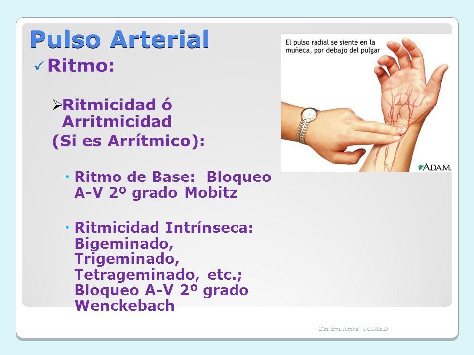 Pulso Arterial Ritmo: Ritmicidad ó Arritmicidad (Si es Arrítmico): Ritmo de Base: Bloqueo A-V 2º grado Mobitz Ritmicidad Intrínseca: Bigeminado, Trige