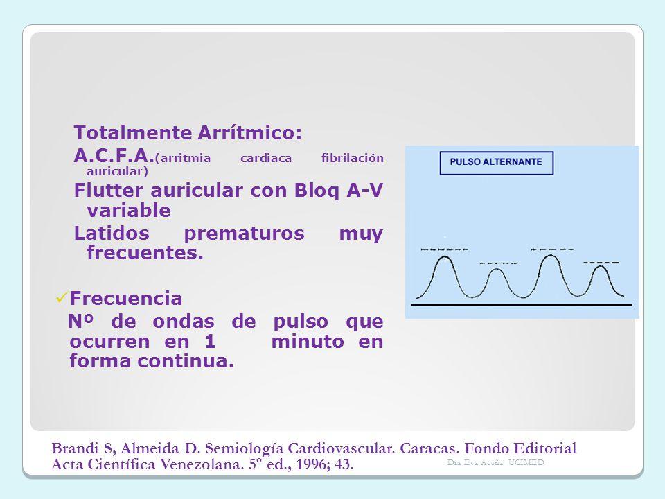 Totalmente Arrítmico: A.C.F.A. (arritmia cardiaca fibrilación auricular) Flutter auricular con Bloq A-V variable Latidos prematuros muy frecuentes. Fr