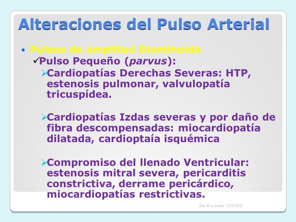 Alteraciones del Pulso Arterial Pulsos de amplitud Disminuída Pulso Pequeño (parvus): Cardiopatías Derechas Severas: HTP, estenosis pulmonar, valvulop