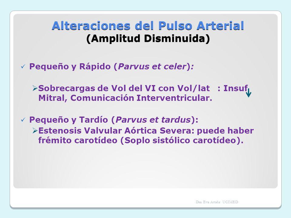Alteraciones del Pulso Arterial (Amplitud Disminuida) Pequeño y Rápido (Parvus et celer): Sobrecargas de Vol del VI con Vol/lat : Insuf Mitral, Comuni