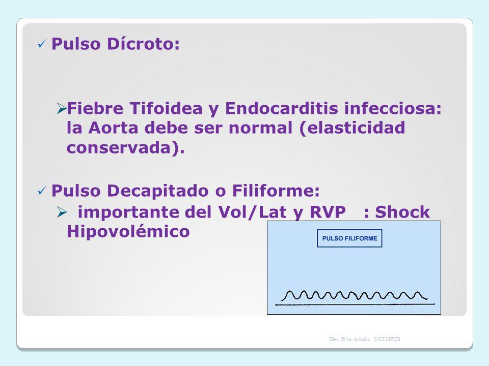 Pulso Dícroto: Fiebre Tifoidea y Endocarditis infecciosa: la Aorta debe ser normal (elasticidad conservada). Pulso Decapitado o Filiforme: importante
