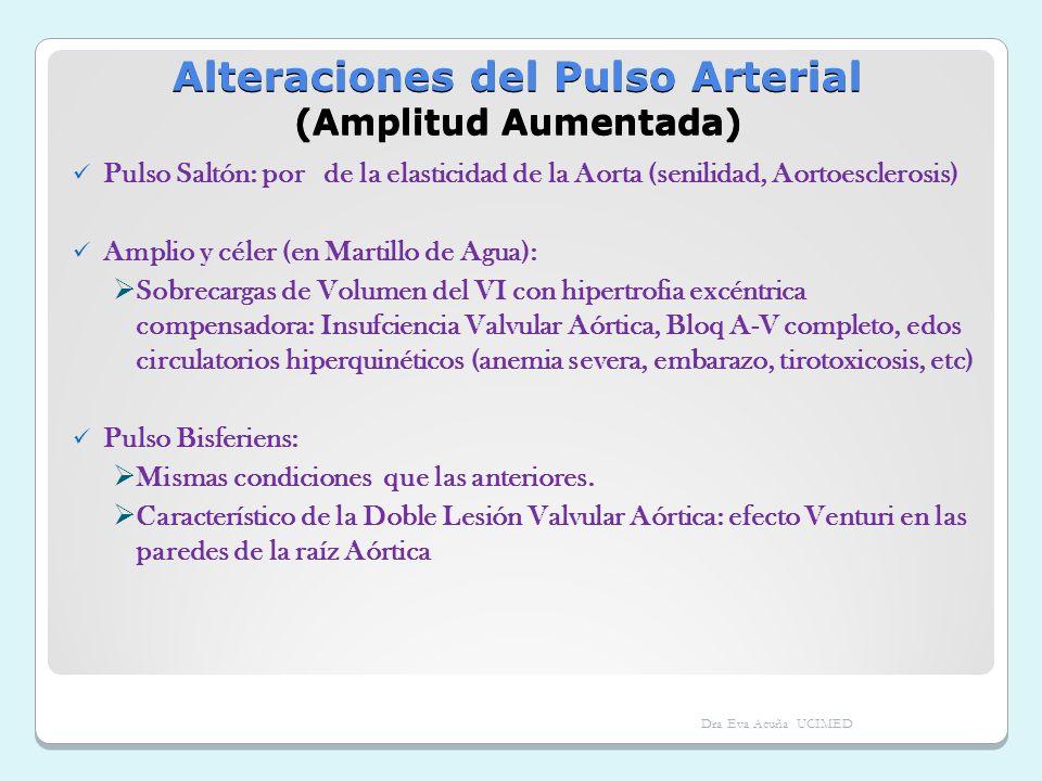 Alteraciones del Pulso Arterial (Amplitud Aumentada) Pulso Saltón: por de la elasticidad de la Aorta (senilidad, Aortoesclerosis) Amplio y céler (en M