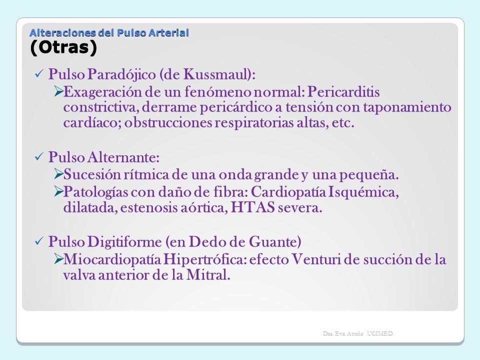 Alteraciones del Pulso Arterial (Otras) Pulso Paradójico (de Kussmaul): Exageración de un fenómeno normal: Pericarditis constrictiva, derrame pericárd