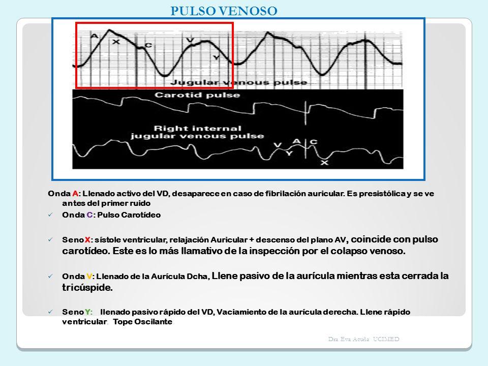 Onda A: Llenado activo del VD, desaparece en caso de fibrilación auricular. Es presistólica y se ve antes del primer ruido Onda C: Pulso Carotídeo Sen