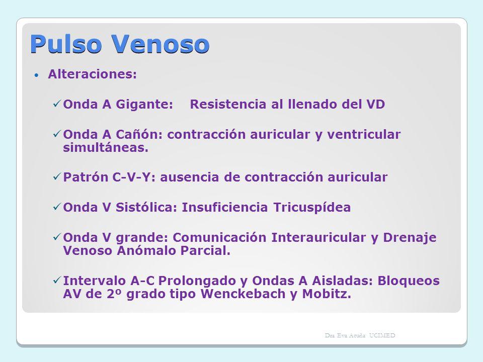 Pulso Venoso Alteraciones: Onda A Gigante: Resistencia al llenado del VD Onda A Cañón: contracción auricular y ventricular simultáneas. Patrón C-V-Y: