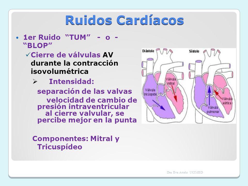 Ruidos Cardíacos 1er Ruido TUM - o - BLOP Cierre de válvulas AV durante la contracción isovolumétrica Intensidad: separación de las valvas velocidad d