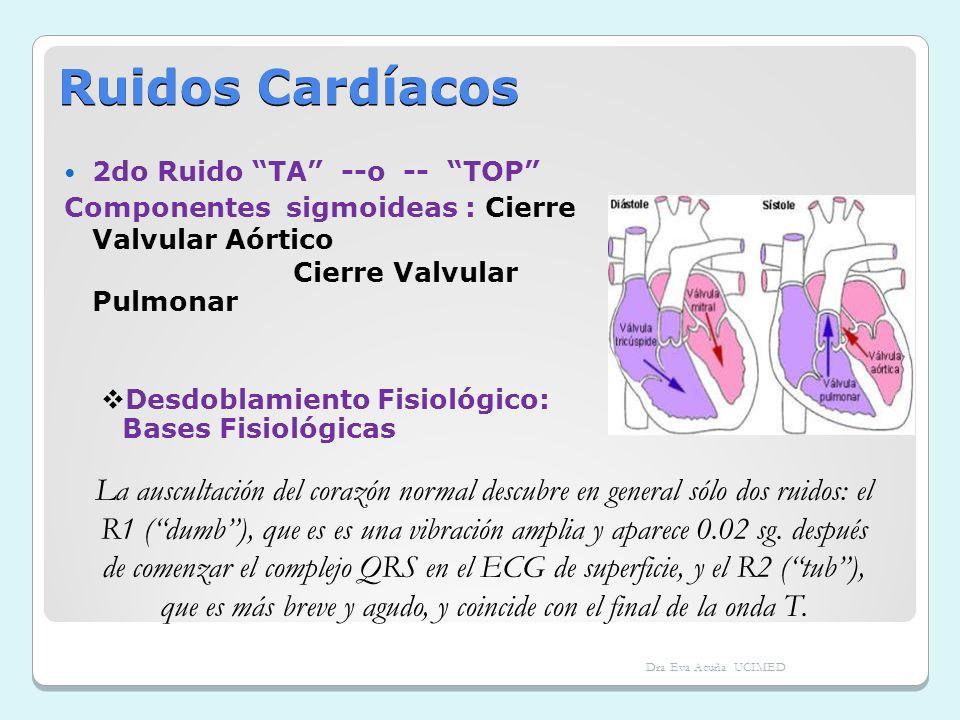 Ruidos Cardíacos 2do Ruido TA --o -- TOP Componentes sigmoideas : Cierre Valvular Aórtico Cierre Valvular Pulmonar Desdoblamiento Fisiológico: Bases F