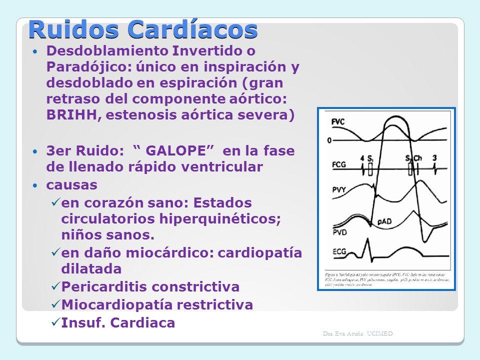 Ruidos Cardíacos Desdoblamiento Invertido o Paradójico: único en inspiración y desdoblado en espiración (gran retraso del componente aórtico: BRIHH, e