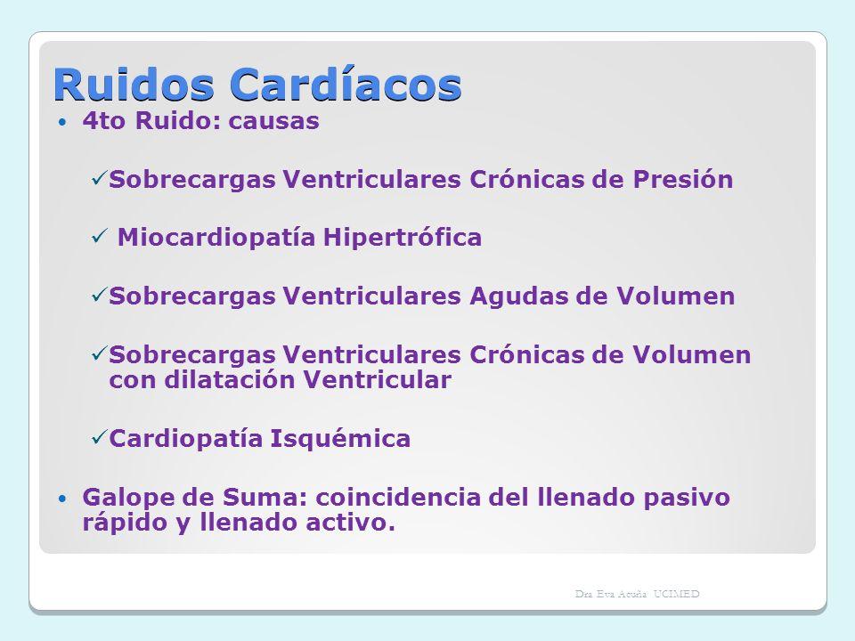 Ruidos Cardíacos 4to Ruido: causas Sobrecargas Ventriculares Crónicas de Presión Miocardiopatía Hipertrófica Sobrecargas Ventriculares Agudas de Volum