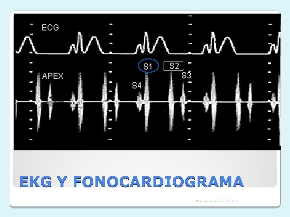 EKG Y FONOCARDIOGRAMA Dra Eva Acuña UCIMED