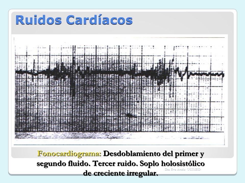 Ruidos Cardíacos Fonocardiograma: Desdoblamiento del primer y segundo fluido. Tercer ruido. Soplo holosistólico de creciente irregular. Dra Eva Acuña