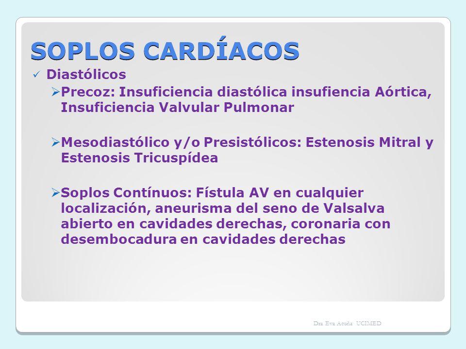 SOPLOS CARDÍACOS Diastólicos Precoz: Insuficiencia diastólica insufiencia Aórtica, Insuficiencia Valvular Pulmonar Mesodiastólico y/o Presistólicos: E