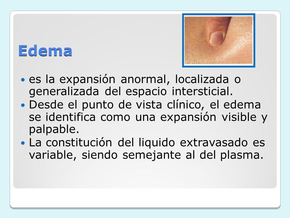 Edema es la expansión anormal, localizada o generalizada del espacio intersticial. Desde el punto de vista clínico, el edema se identifica como una ex