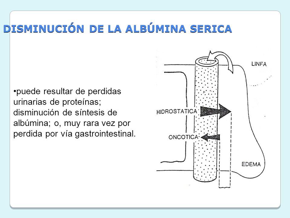 DISMINUCIÓN DE LA ALBÚMINA SERICA puede resultar de perdidas urinarias de proteínas; disminución de síntesis de albúmina; o, muy rara vez por perdida