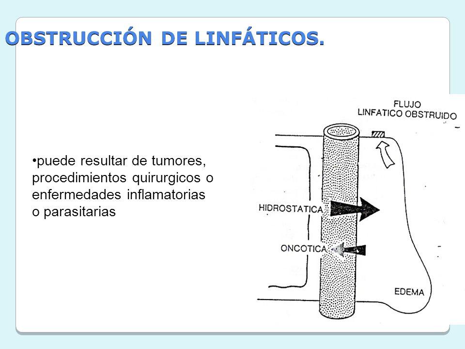 OBSTRUCCIÓN DE LINFÁTICOS. puede resultar de tumores, procedimientos quirurgicos o enfermedades inflamatorias o parasitarias