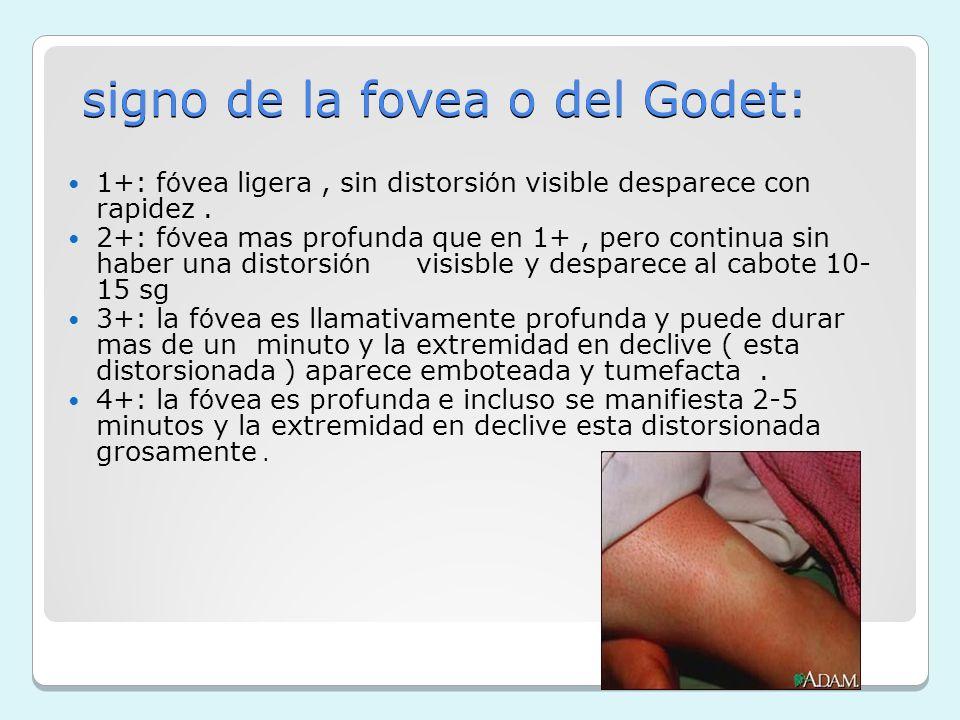signo de la fovea o del Godet: 1+: f ó vea ligera, sin distorsi ó n visible desparece con rapidez. 2+: f ó vea mas profunda que en 1+, pero continua s