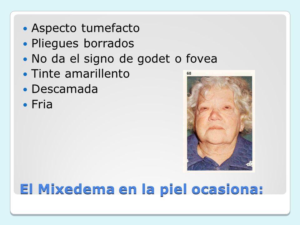 El Mixedema en la piel ocasiona: Aspecto tumefacto Pliegues borrados No da el signo de godet o fovea Tinte amarillento Descamada Fria