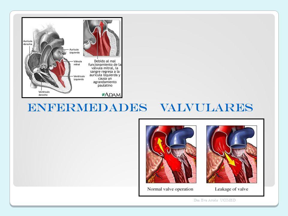 ENFERMEDADES VALVULARES Dra Eva Acuña UCIMED