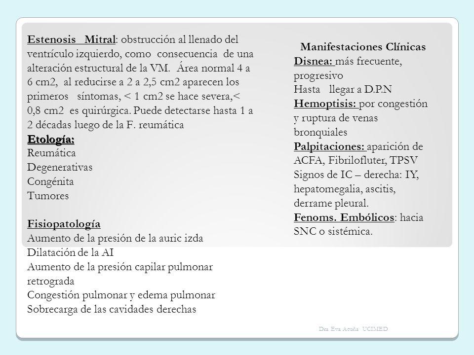 Estenosis Mitral: obstrucción al llenado del ventrículo izquierdo, como consecuencia de una alteración estructural de la VM. Área normal 4 a 6 cm2, al