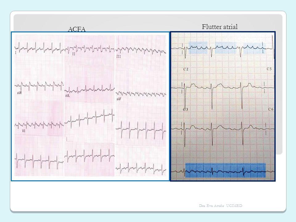ACFA Flutter atrial Dra Eva Acuña UCIMED