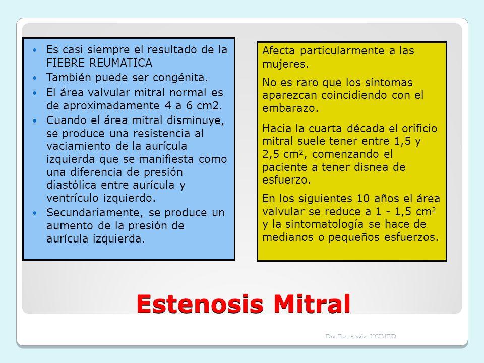Estenosis Mitral Es casi siempre el resultado de la FIEBRE REUMATICA También puede ser congénita. El área valvular mitral normal es de aproximadamente