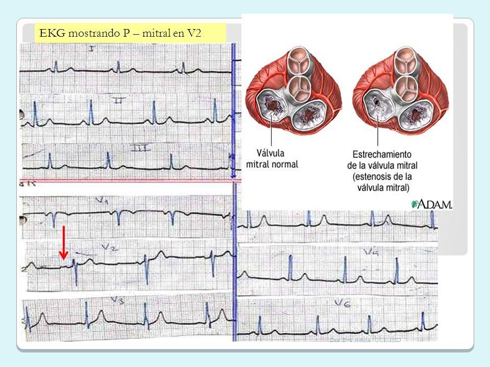 EKG mostrando P – mitral en V2 Dra Eva Acuña UCIMED