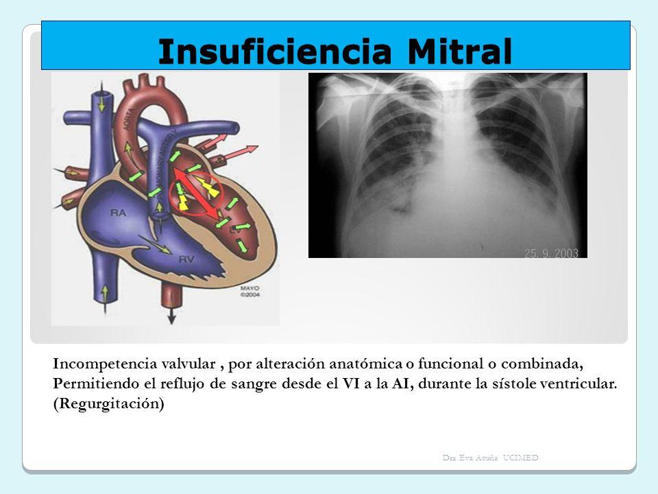 Insuficiencia Mitral Incompetencia valvular, por alteración anatómica o funcional o combinada, Permitiendo el reflujo de sangre desde el VI a la AI, d