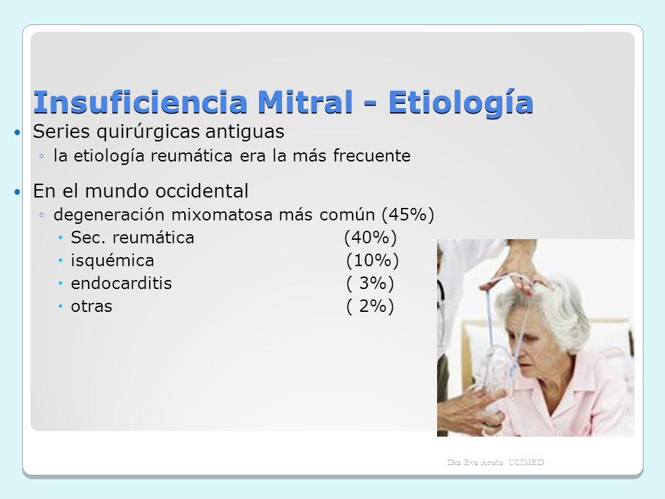 Insuficiencia Mitral - Etiología Series quirúrgicas antiguas la etiología reumática era la más frecuente En el mundo occidental degeneración mixomatos