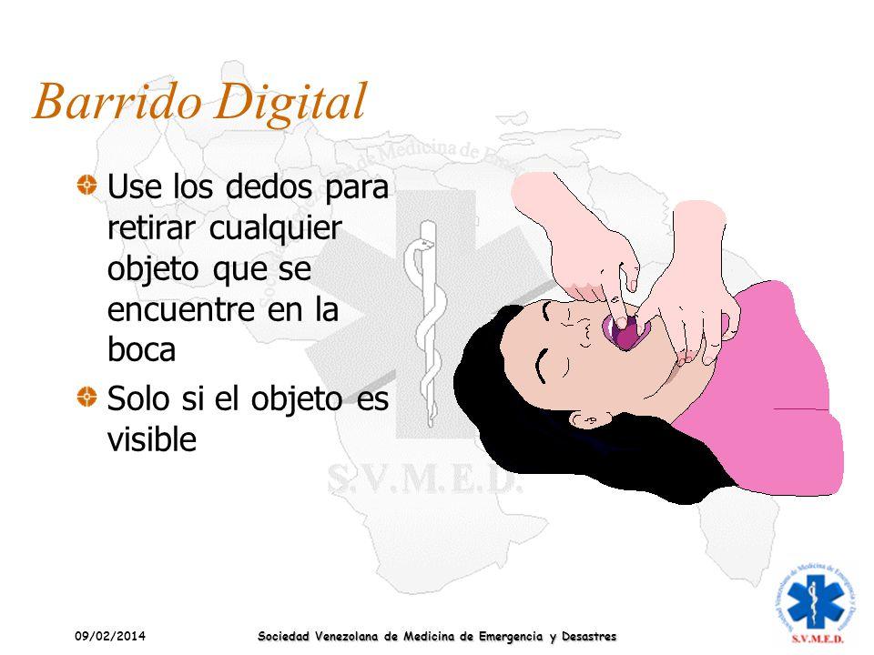 09/02/2014 Sociedad Venezolana de Medicina de Emergencia y Desastres Barrido Digital Use los dedos para retirar cualquier objeto que se encuentre en l