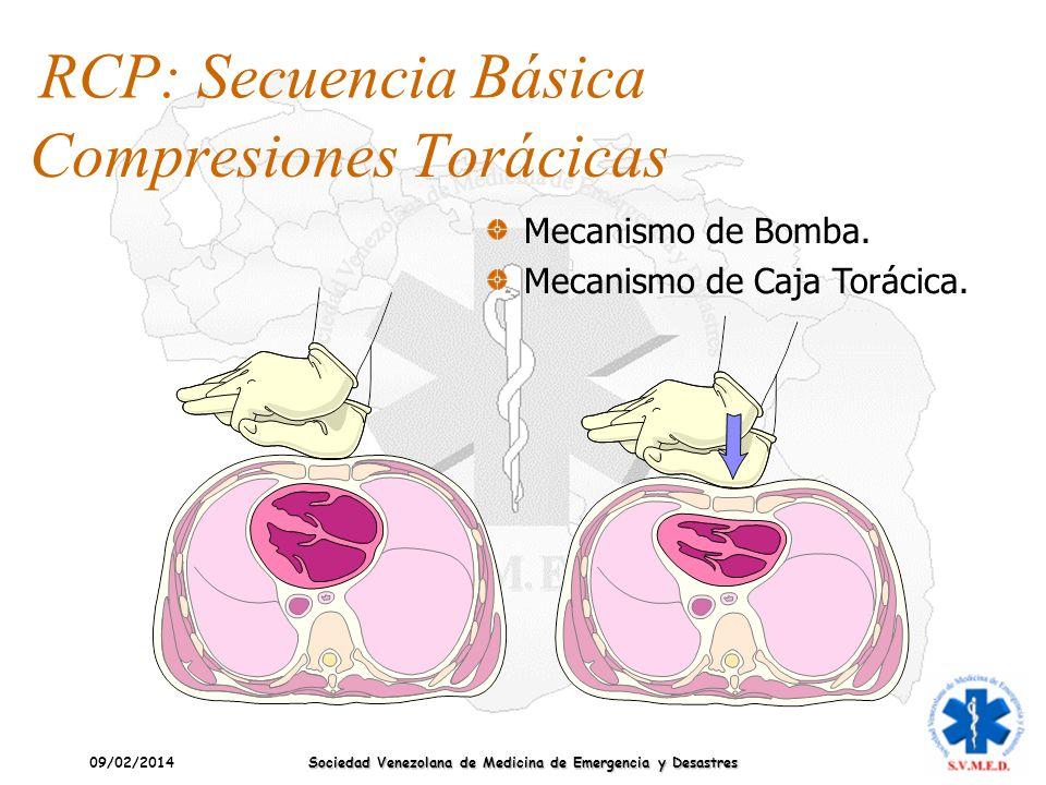 09/02/2014 Sociedad Venezolana de Medicina de Emergencia y Desastres Compresiones Torácicas Mecanismo de Bomba. Mecanismo de Caja Torácica. RCP: Secue