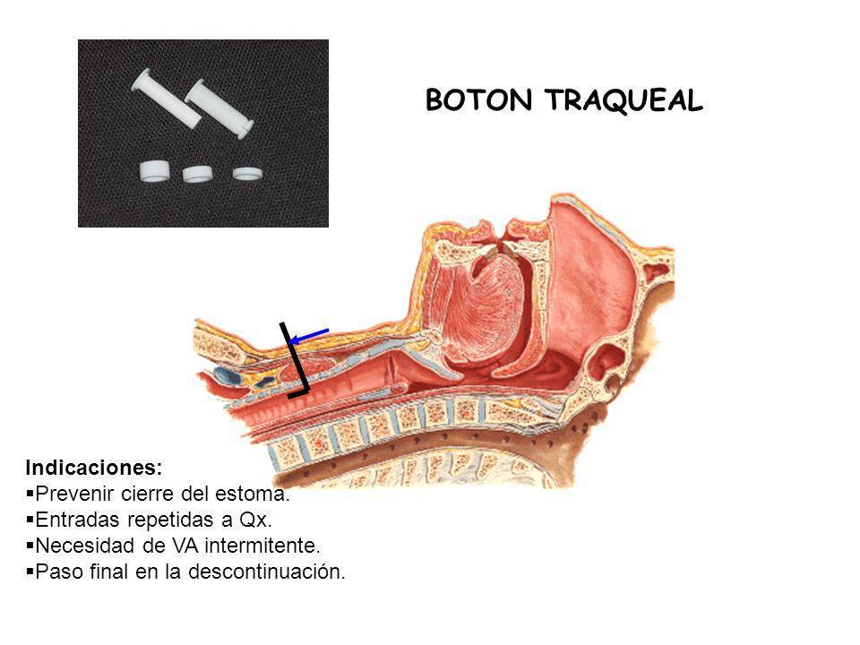 BOTON TRAQUEAL Indicaciones: Prevenir cierre del estoma.