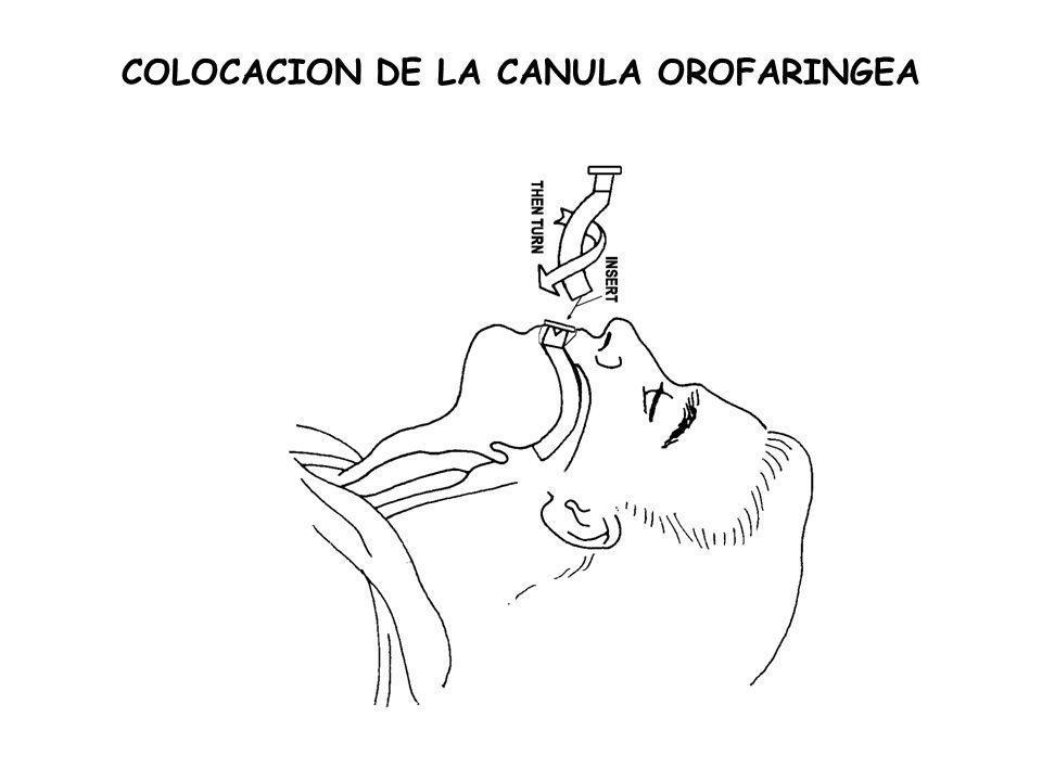 COLOCACION DE LA CANULA OROFARINGEA