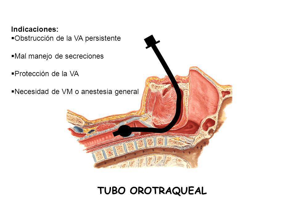 TUBO OROTRAQUEAL Indicaciones: Obstrucción de la VA persistente Mal manejo de secreciones Protección de la VA Necesidad de VM o anestesia general