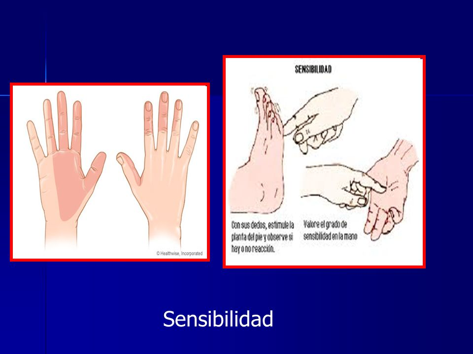 Sensibilidad