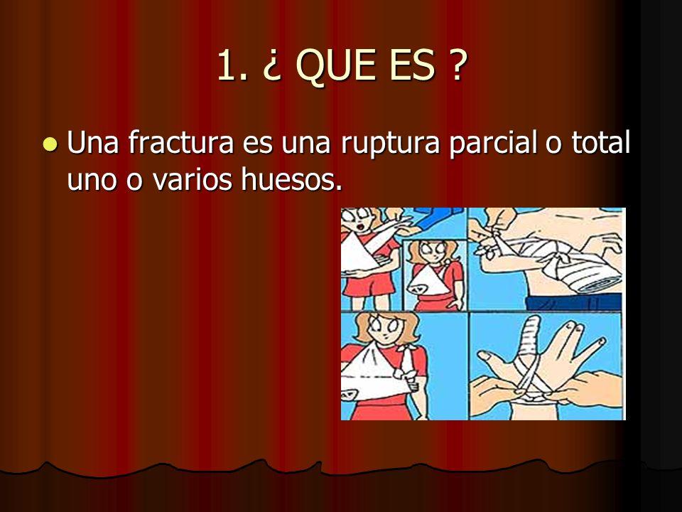 1. ¿ QUE ES ? Una fractura es una ruptura parcial o total uno o varios huesos. Una fractura es una ruptura parcial o total uno o varios huesos.
