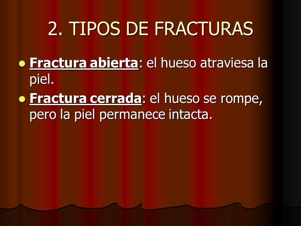 2. TIPOS DE FRACTURAS Fractura abierta: el hueso atraviesa la piel. Fractura abierta: el hueso atraviesa la piel. Fractura cerrada: el hueso se rompe,