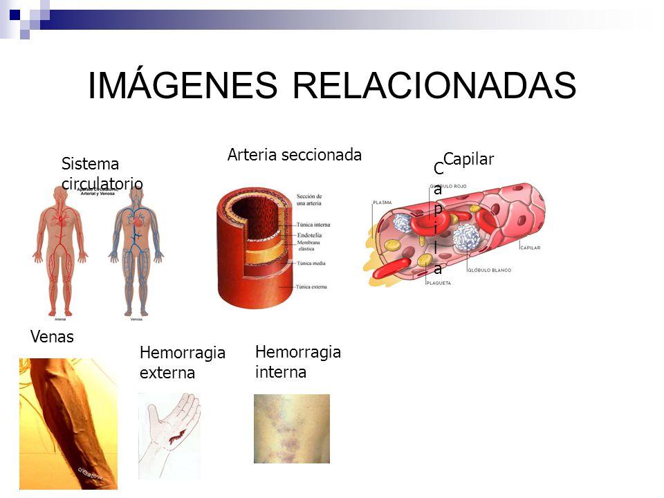 IMÁGENES RELACIONADAS Sistema circulatorio Arteria seccionada CapilaCapila Capilar Venas Hemorragia externa Hemorragia interna