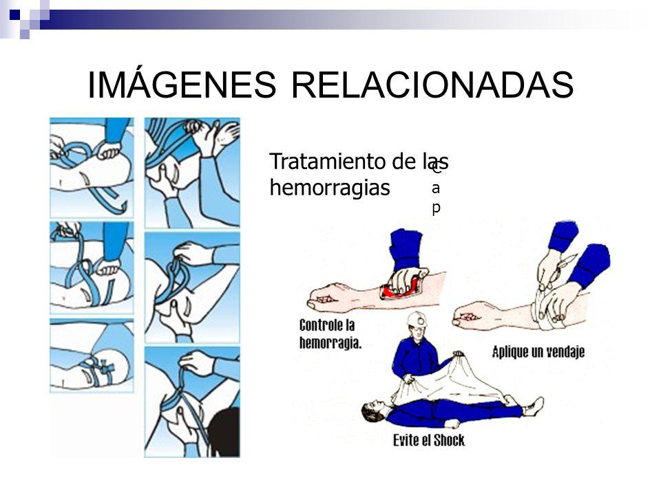 IMÁGENES RELACIONADAS CapilaCapila Tratamiento de las hemorragias