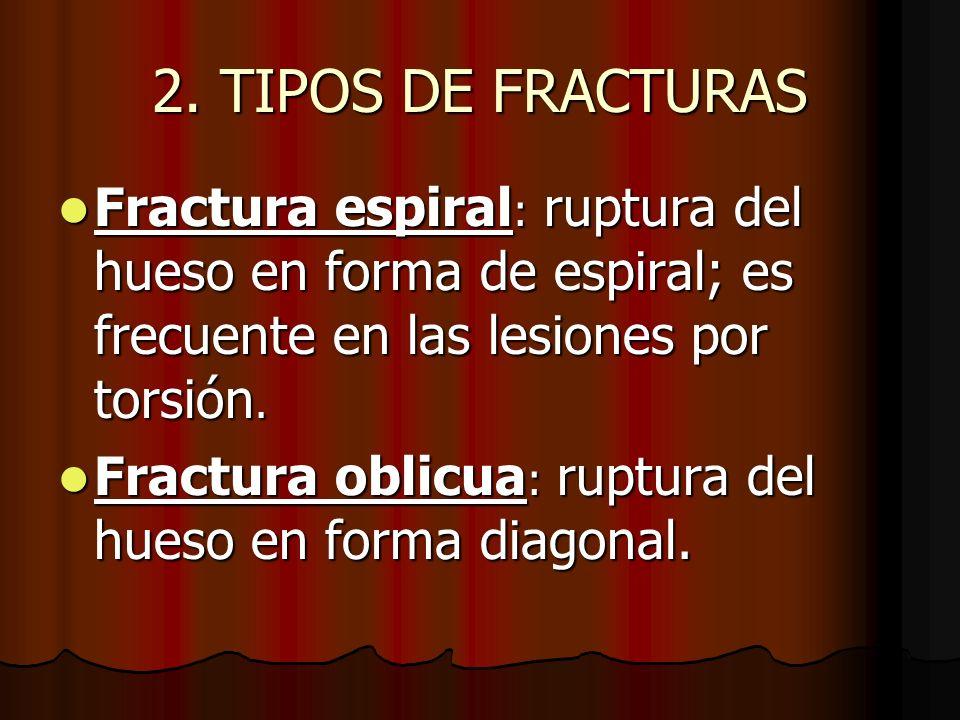 2. TIPOS DE FRACTURAS Fractura espiral : ruptura del hueso en forma de espiral; es frecuente en las lesiones por torsión. Fractura espiral : ruptura d