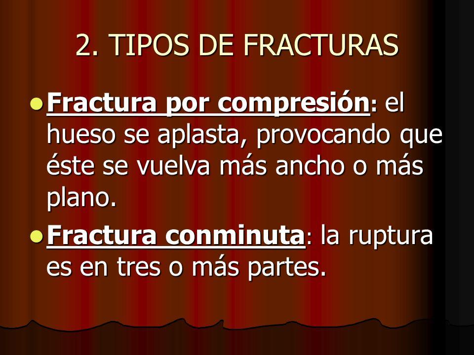 2. TIPOS DE FRACTURAS Fractura por compresión : el hueso se aplasta, provocando que éste se vuelva más ancho o más plano. Fractura por compresión : el