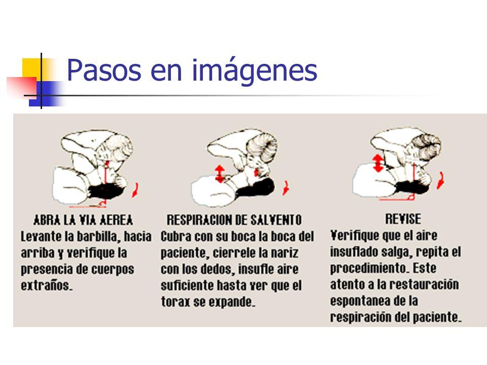 Pasos en imágenes 1º)