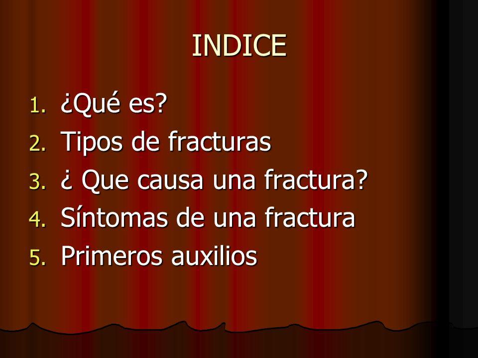 INDICE 1. ¿Qué es? 2. Tipos de fracturas 3. ¿ Que causa una fractura? 4. Síntomas de una fractura 5. Primeros auxilios